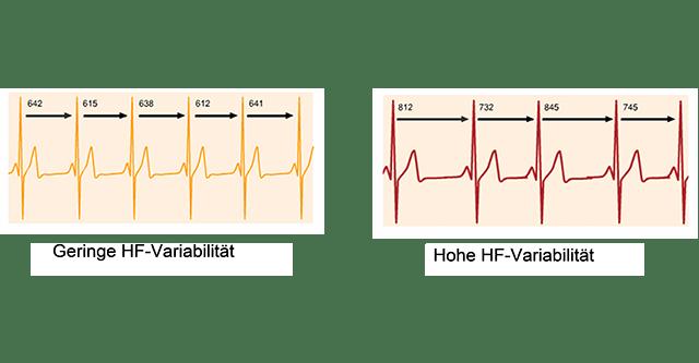 Abbildung hoher und geringer Herzfrequenzvariabilität